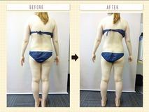 高濃度炭酸痩身 右側のみ施術