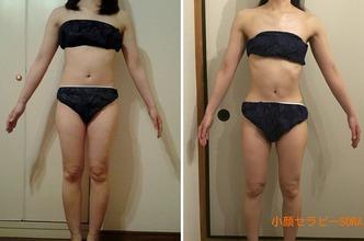 オ-ルハンドの高濃度炭酸痩身で身体を変える!